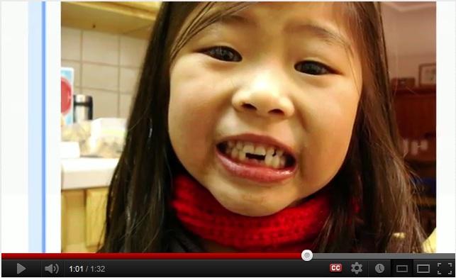 sophie – teeth